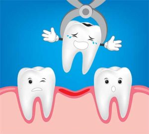 Tooth Extraction | Dental Care On Pultney Adelaide