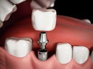 Dental Implants   Dental Care On Pultney Adelaide