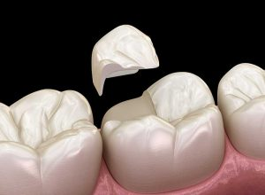 Teeth Structure | Dental Care On Pultney Adelaide